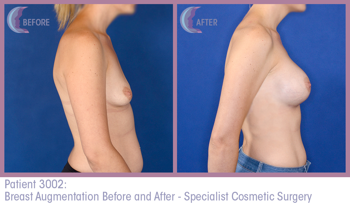 augmentation pregnancy breast after