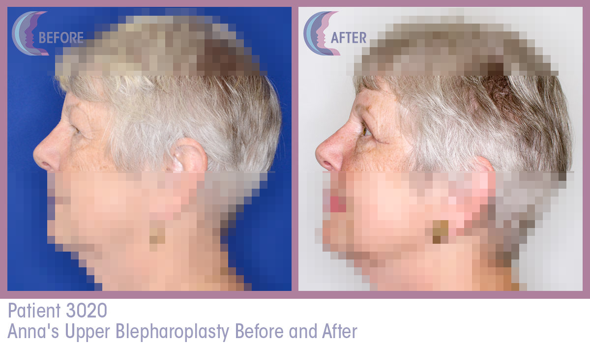 blepharoplasty-before-and-after