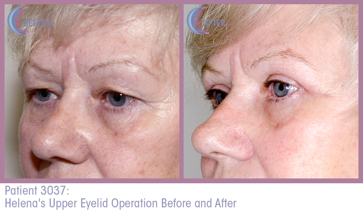 Patient 3037 Blepharoplasty Before and After