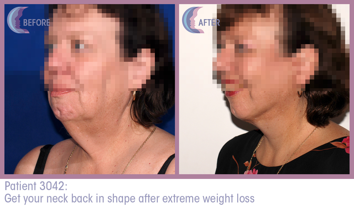 Patient 3042 Full Facelift Before and After