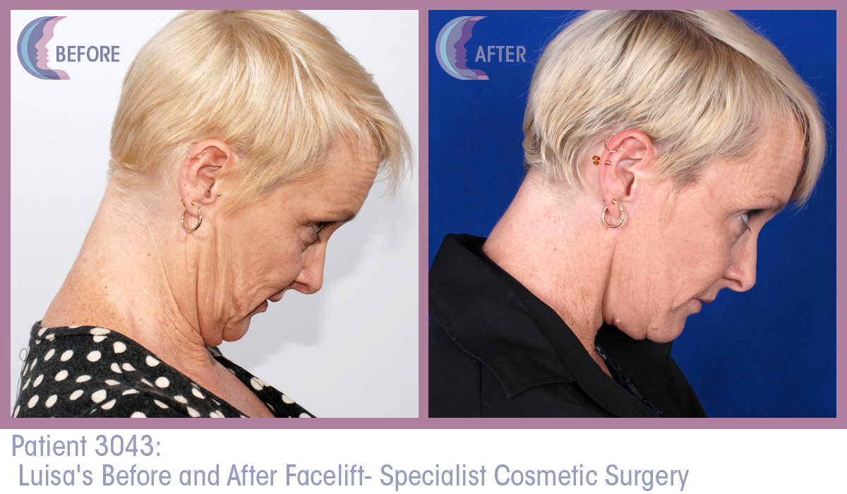 Patient 3043 Full Facelift Before and After