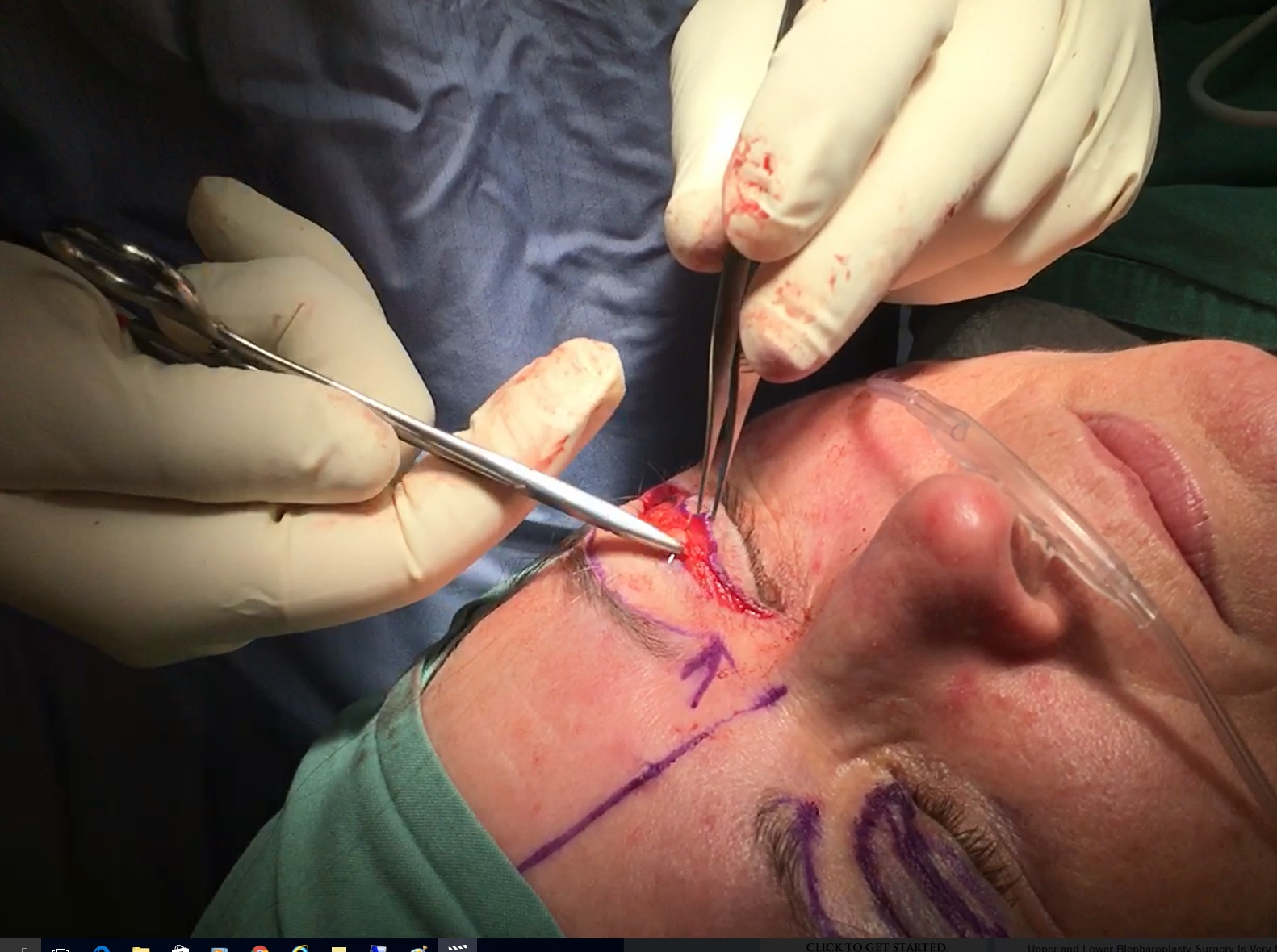 blepharoplasty-plicating-the-upper-eyelids