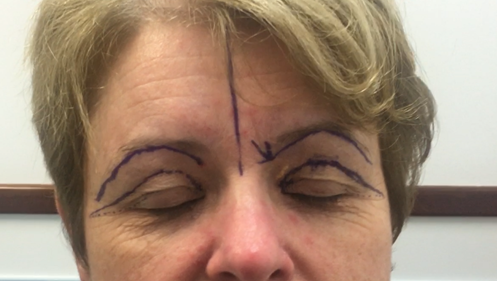 blepharoplasty-marking-out-surgical-site