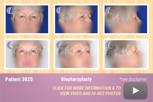Patient 3020 Blepharoplasty