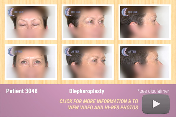 Patient 3048 Blepharoplasty